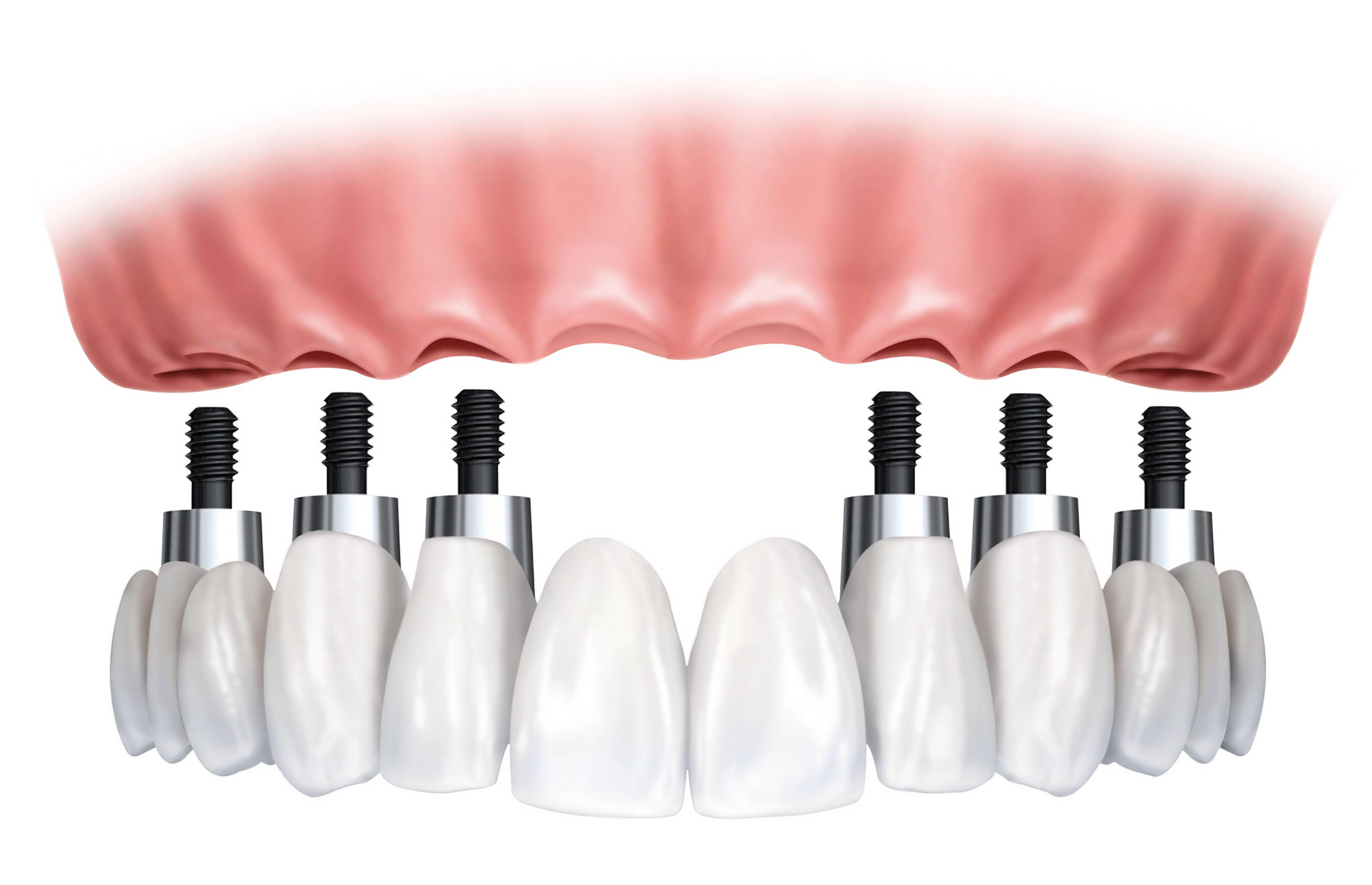 کاشت دندان یا ایمپلنت چیست؟
